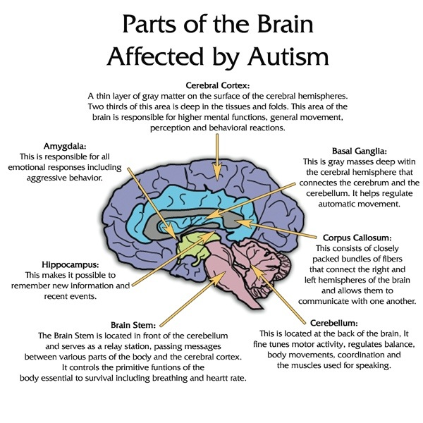 Parts of the brain affected by Autism