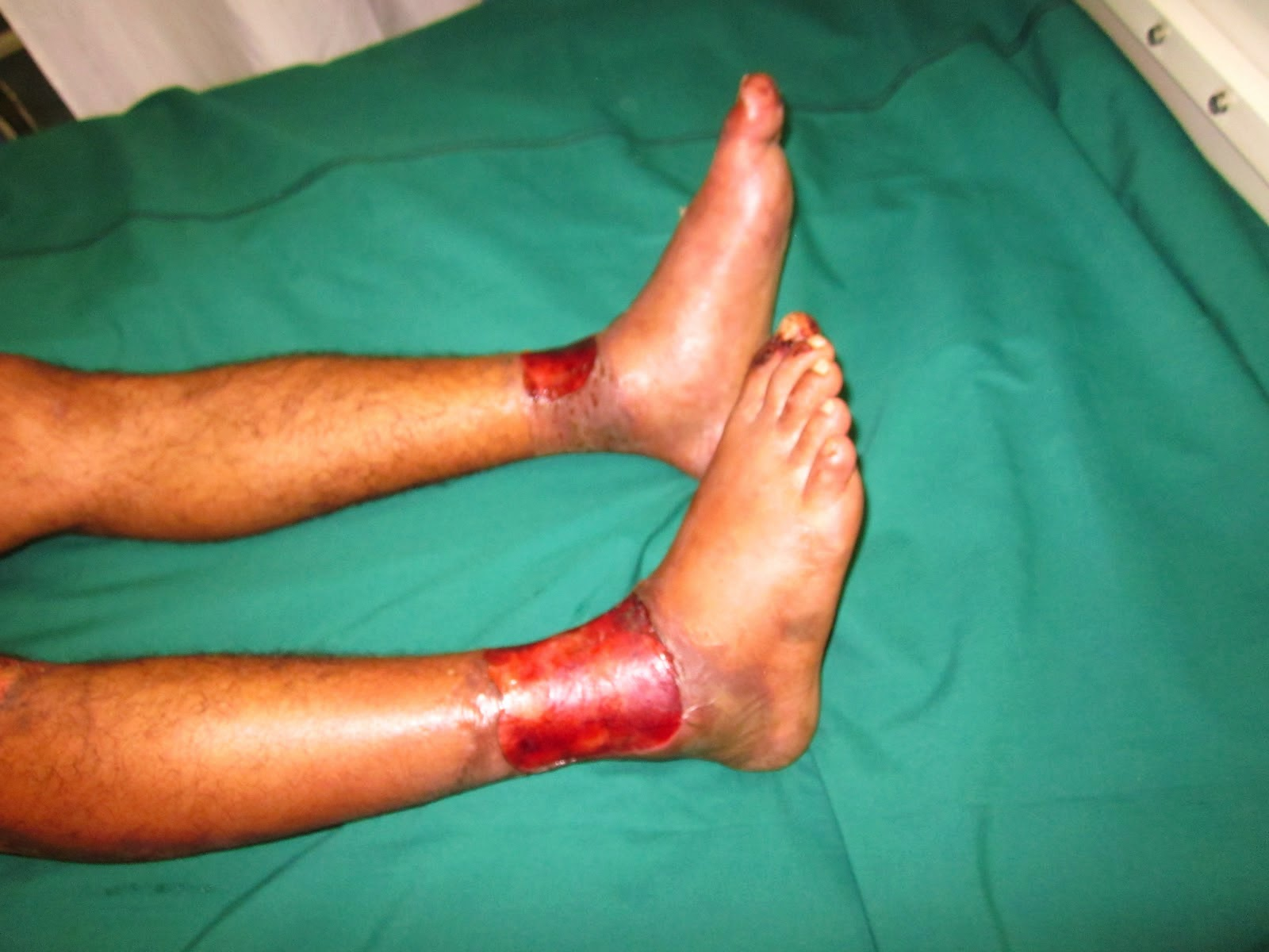 How to Deal with Blood Poisoning, Sepsis (SIRS) images