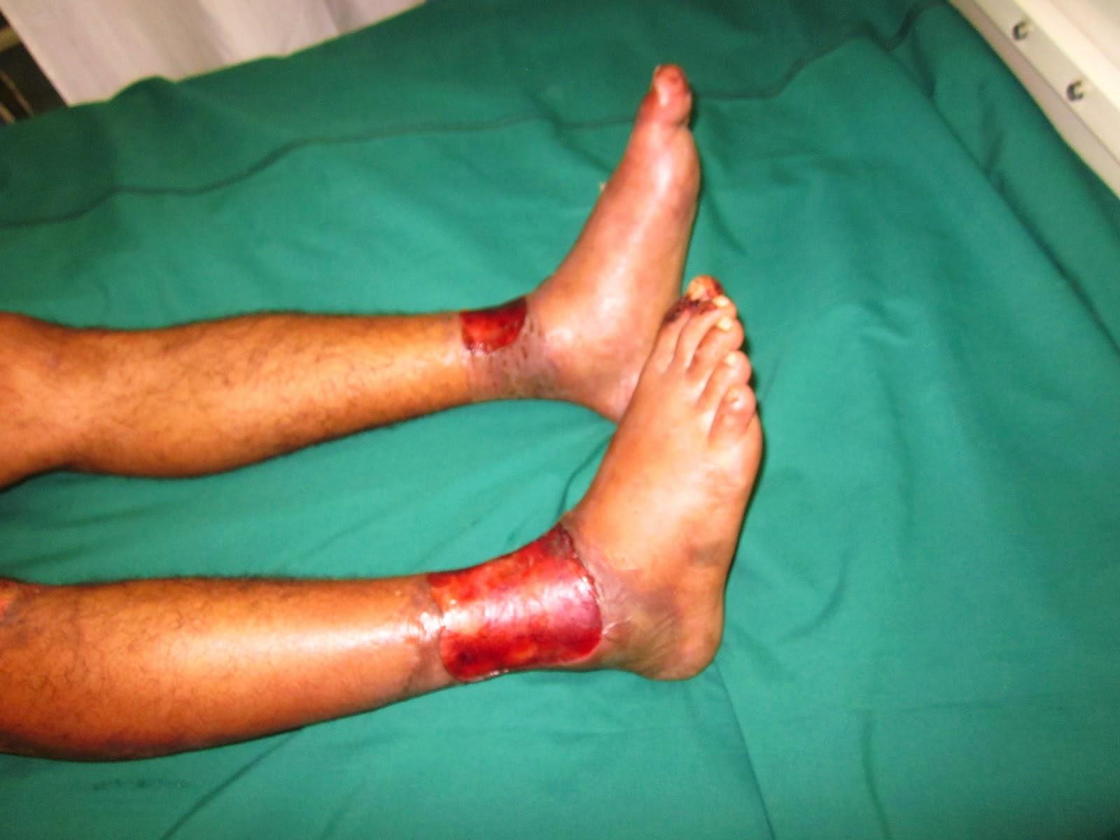 septicemia legs