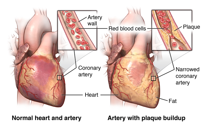 Comparing a healthy heart to one with angina pectoris