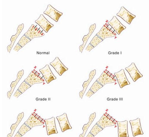 Grading of anterolisthesis