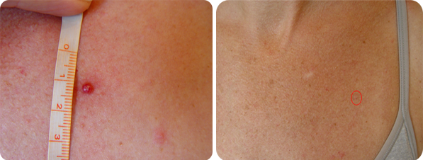 Cherry Angioma Before and After Picture