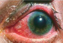 Iridocyclitis