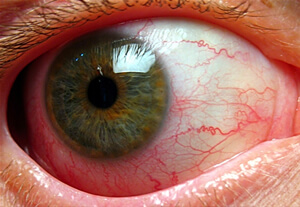 Iridocyclitis picture