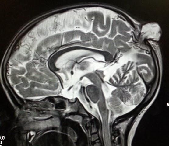 Parietal Encephaloceles