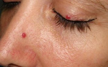 cherry angioma pictures