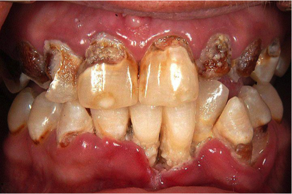 Trench Mouth or Necrotising Ulcerative Gingivitis (NUG)